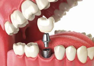 Tooth human implant Dental web